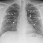 Lungröntgen
