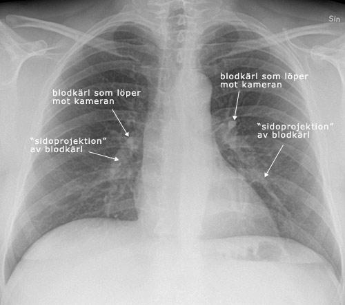 lungröntgen utan remiss