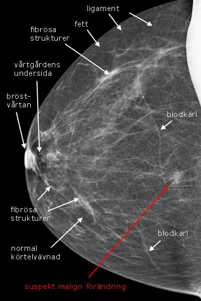 ofarlig knöl i bröstet